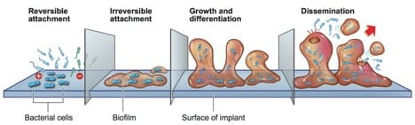 , Biofilm and Breast Implant Contracture