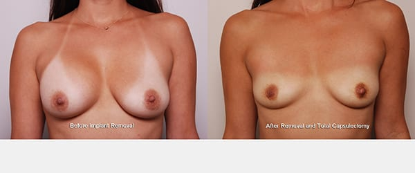 breast augmentation tubular, Breast Implant Illness